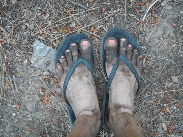 T-Fox's feet after a 30 miler. Her feet look so pretty with that polish from Mikki...